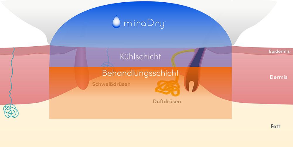 Übermäßiges Achselschweiß mit miraDry behandeln in der Klinik Dr. Katrin Müller in Hannover